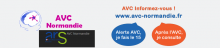 AVC Normandie : Informations.